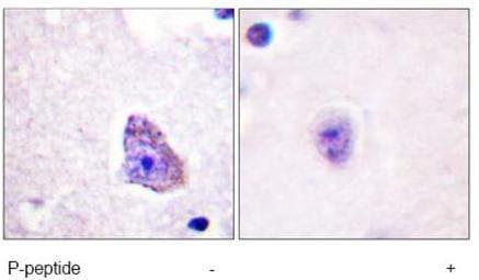 Immunohistochemistry (Paraffin-embedded sections) - Anti-P70 S6 Kinase alpha (phospho T229) antibody (ab59208)