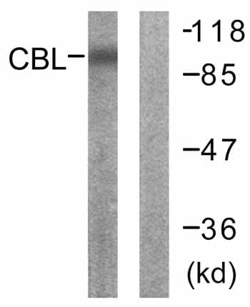 Western blot - CBL antibody (ab59211)