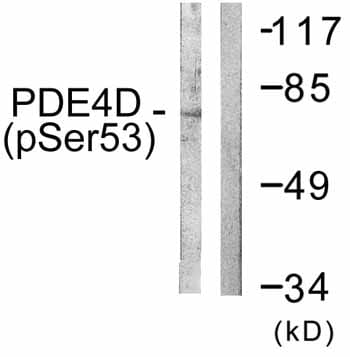 Western blot - PDE4D (phospho S190) antibody (ab59212)