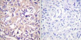 Immunohistochemistry (Paraffin-embedded sections) - Thymidine Kinase  antibody (ab59271)