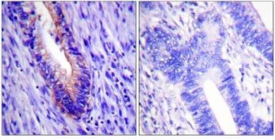 Immunohistochemistry (Paraffin-embedded sections) - eIF4G1 antibody (ab59287)