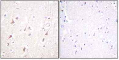 Immunohistochemistry (Paraffin-embedded sections) - IRS1 antibody (ab59292)