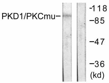 Western blot - PKC mu antibody (ab59334)