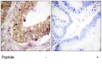 Immunohistochemistry (Paraffin-embedded sections) - ATRIP antibody (ab59346)