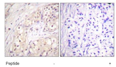 Immunohistochemistry (Paraffin-embedded sections) - B Raf antibody (ab59354)