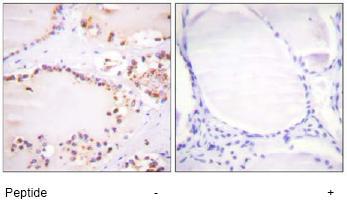 Immunohistochemistry (Paraffin-embedded sections) - BMX antibody (ab59360)