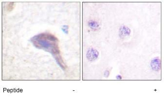 Immunohistochemistry (Formalin/PFA-fixed paraffin-embedded sections) - PKC mu antibody (ab59366)