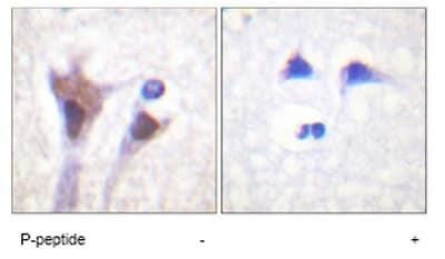 Immunohistochemistry (Paraffin-embedded sections) - 14-3-3 zeta + delta (phospho T232) antibody (ab59374)