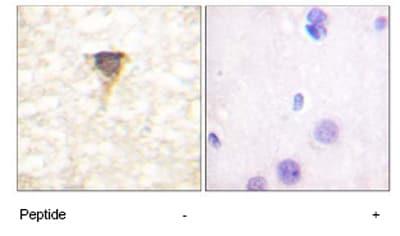 Immunohistochemistry (Paraffin-embedded sections) - CAMKIV antibody (ab59386)