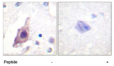 Immunohistochemistry (Paraffin-embedded sections) - Cdc25B antibody (ab59391)