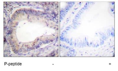 Anti-Bcl-2 (phospho T69) antibody (ab59397)