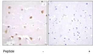 Immunohistochemistry (Paraffin-embedded sections) - Casein Kinase 2 beta antibody (ab59399)