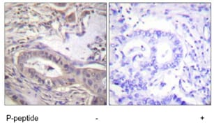 Immunohistochemistry (Formalin/PFA-fixed paraffin-embedded sections) - Anti-Bcl-XL (phospho T47) antibody (ab59402)