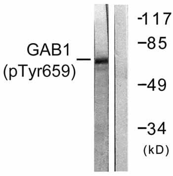 Western blot - GAB1 (phospho Y659) antibody (ab59410)