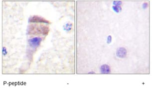 Immunohistochemistry (Formalin/PFA-fixed paraffin-embedded sections) - PKC mu (phospho S205) antibody (ab59413)
