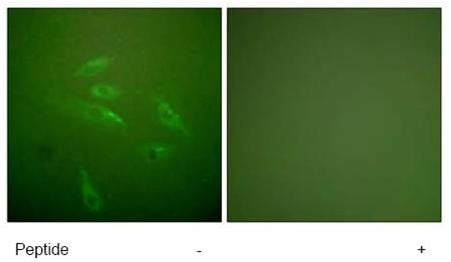 Immunocytochemistry/ Immunofluorescence - Collagen III antibody (ab59436)