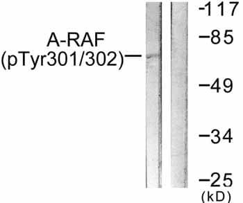 Western blot - A RAF (phospho Y301 + Y302) antibody (ab59439)