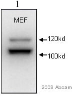 Western blot - alpha Actinin 4 antibody (ab59468)