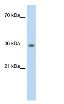 Western blot - PHYHIP antibody (ab59699)