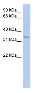 Western blot - Carbonic Anhydrase IV antibody (ab59723)