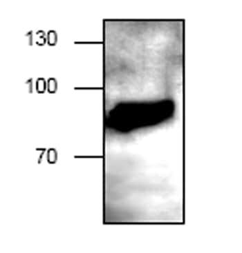Western blot - CD62P antibody (ab59738)