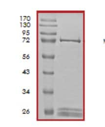 SDS-PAGE - CDC42 binding protein kinase alpha protein (Tagged) (ab59979)