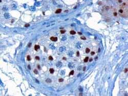 Immunohistochemistry (Formalin/PFA-fixed paraffin-embedded sections) - KPNA4 antibody (ab6039)