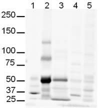 Western blot - Gli3 antibody (ab6050)