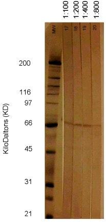 Western blot - Cytomegalovirus antibody [6F12] (ab6500)
