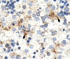 Immunohistochemistry (Formalin/PFA-fixed paraffin-embedded sections) - Anti-Mov10 antibody (ab60132)