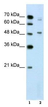 Western blot - NR0B1 / Dax1 antibody (ab60144)