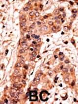 Immunohistochemistry (Formalin/PFA-fixed paraffin-embedded sections) - Guanylyl Cyclase alpha 2 antibody (ab60226)