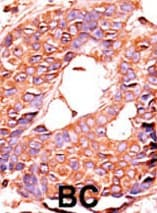 Immunohistochemistry (Formalin/PFA-fixed paraffin-embedded sections) - PPP6C antibody (ab60249)