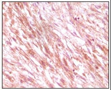 Immunohistochemistry (Formalin/PFA-fixed paraffin-embedded sections) - c-Kit antibody [8D7B4, 8D7D4, 7H6B2,7H6B12L] (ab60585)