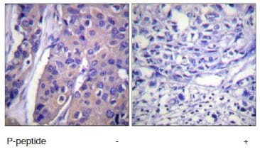 Immunohistochemistry (Formalin/PFA-fixed paraffin-embedded sections) - Raf1 (phospho S296) antibody (ab60985)