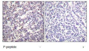 Immunohistochemistry (Formalin/PFA-fixed paraffin-embedded sections) - B Raf (phospho S601) antibody (ab60997)