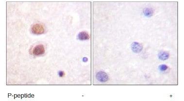 Immunohistochemistry (Formalin/PFA-fixed paraffin-embedded sections) - p38 (phospho Y322) antibody (ab60999)