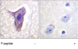 Immunohistochemistry (Formalin/PFA-fixed paraffin-embedded sections) - C5R1 (phospho S338) antibody (ab61022)