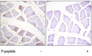 Immunohistochemistry (Formalin/PFA-fixed paraffin-embedded sections) - alpha B Crystallin (phospho S19) antibody (ab61028)
