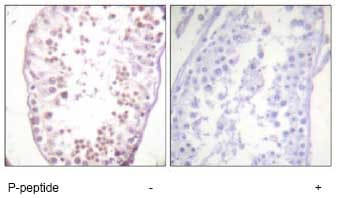 Immunohistochemistry (Formalin/PFA-fixed paraffin-embedded sections) - HDAC6 (phospho S22) antibody (ab61058)