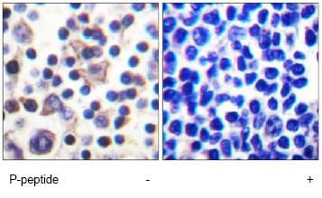 Immunohistochemistry (Formalin/PFA-fixed paraffin-embedded sections) - IL9R (phospho S519) antibody (ab61101)