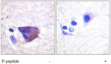Immunohistochemistry (Formalin/PFA-fixed paraffin-embedded sections) - Anti-Kv2.1 (phospho S567) antibody (ab61107)