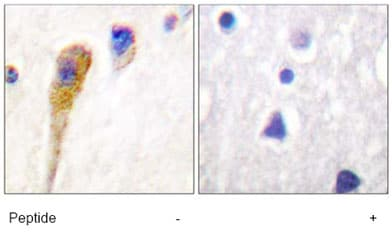 Immunohistochemistry (Formalin/PFA-fixed paraffin-embedded sections) - FAK antibody (ab61113)