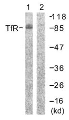 Western blot - Transferrin Receptor antibody (ab61134)