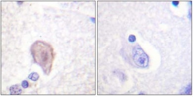 Immunohistochemistry (Formalin/PFA-fixed paraffin-embedded sections) - Raf1 antibody (ab61139)