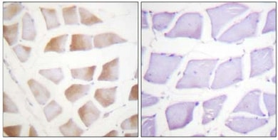 Immunohistochemistry (Formalin/PFA-fixed paraffin-embedded sections) - alpha B Crystallin antibody (ab61141)