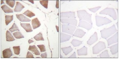 Immunohistochemistry (Formalin/PFA-fixed paraffin-embedded sections) - DAP Kinase 2 antibody (ab61142)