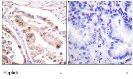 Immunohistochemistry (Formalin/PFA-fixed paraffin-embedded sections) - RPA32/RPA2 antibody (ab61184)