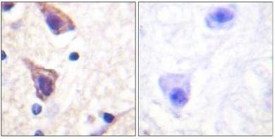 Immunohistochemistry (Formalin/PFA-fixed paraffin-embedded sections) - TGF beta Receptor II antibody (ab61213)