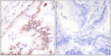 Immunohistochemistry (Formalin/PFA-fixed paraffin-embedded sections) - p300 antibody (ab61217)